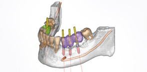 3d-implantatplanung-dentallabor-loering
